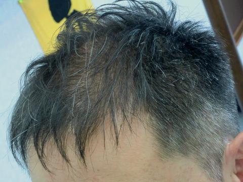 ショートヘア 薄毛